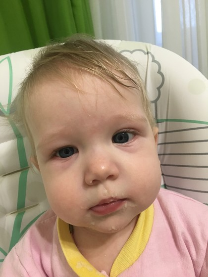 Опухший ребенок с утра
